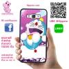 เคส ซัมซุง J5 2015 โดเรม่อน สีม่วง เคสน่ารักๆ เคสโทรศัพท์ เคสมือถือ #1240